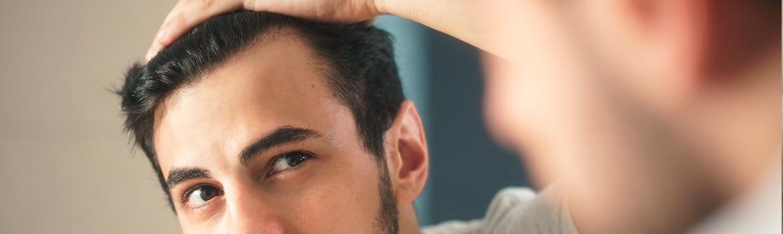 Alopecia Pérdida anormal del pelo