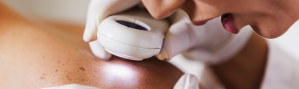 Lunares y cáncer de piel: Aprende a identificar cuándo son peligrosos